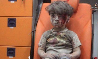 Come sta ora il bimbo di Aleppo
