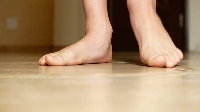 il piede piatto