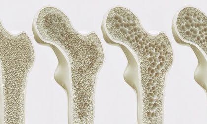 Che cos'è la Moc-Dxa, primo strumento per affrontare l'osteoporosi