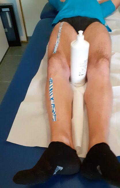 Prima del trattamento correzione varismo del ginocchio