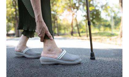 Protesi di caviglia a Brescia: a chi rivolgersi e quando farla