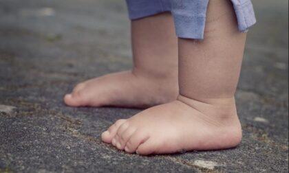 Ortopedia pediatrica: i consigli dell'ortopedico ai genitori