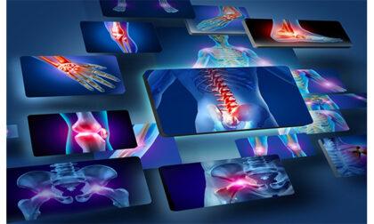 Ortopedia personalizzata a Capriolo, grazie all'approccio del dottor Alberto Caramagno